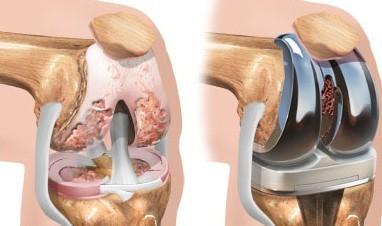 Лечение суставов операция можно при боях в тазобедренном суставе применять прибор дерсенваль